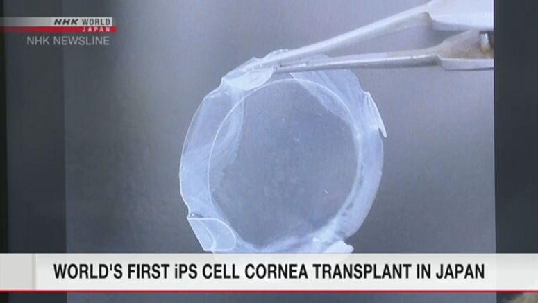 Researchers perform 1st iPS cell cornea transplant