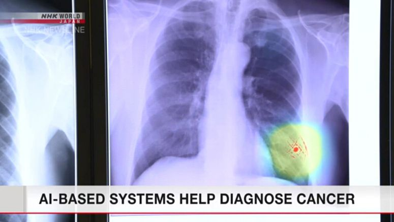 AI-based systems help diagnose cancer