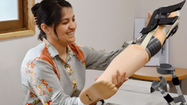 Afghan woman given new artificial leg to